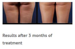 Improvement in Cellulite with Finulite