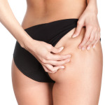 Finulite – A Cellulite Cream That Actually Works?