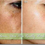 Meladerm: Lighter, Brighter Skin in 2 Weeks?