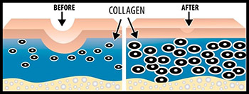 collagen_before_after