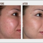 What's the Best Machine for Microdermabrasion at Home?