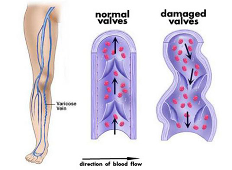 Damaged Veins