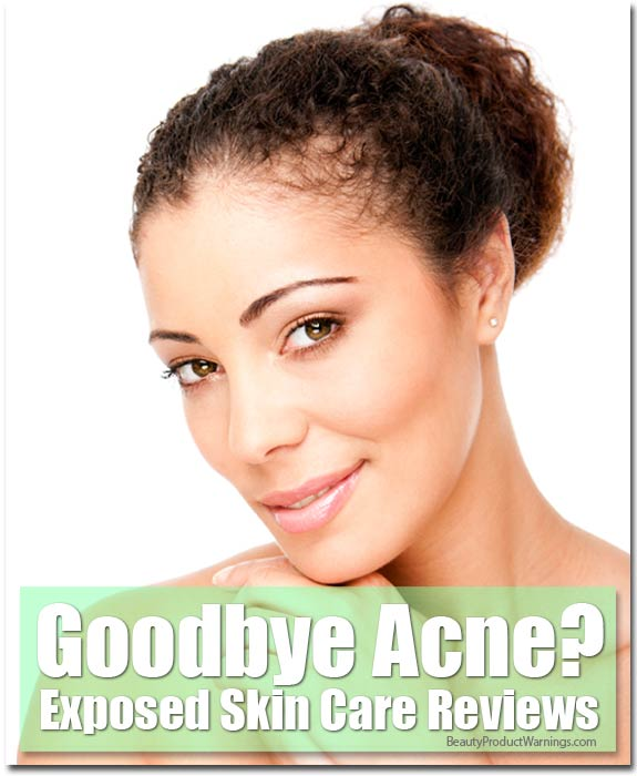 Goodbye Acne?